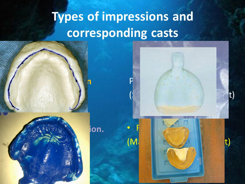 Types of impressions and corresponding casts Primary impression Secondary impression. (Final impression) Primary cast. (Study cast-Diagnostic cast) Fi