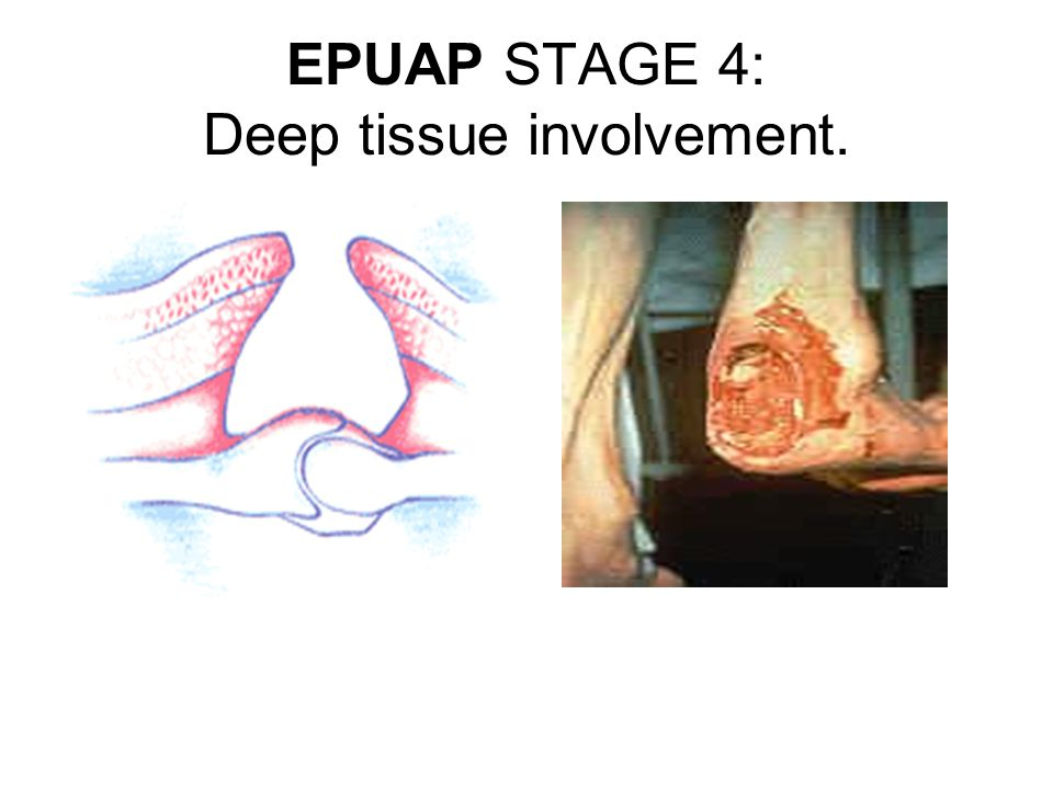 EPUAP STAGE 3: Sub-cutaneous involvement.