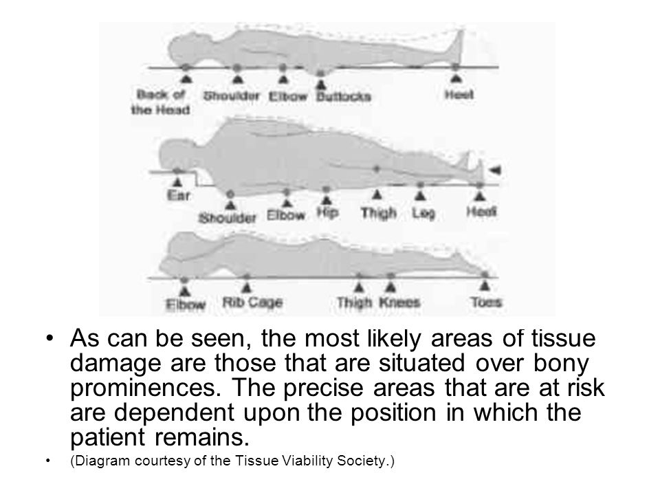 Assessment of pressure ulcer Assess and document: cause site/location dimensions stage or grade necrosis or slough exudate amount and type local signs