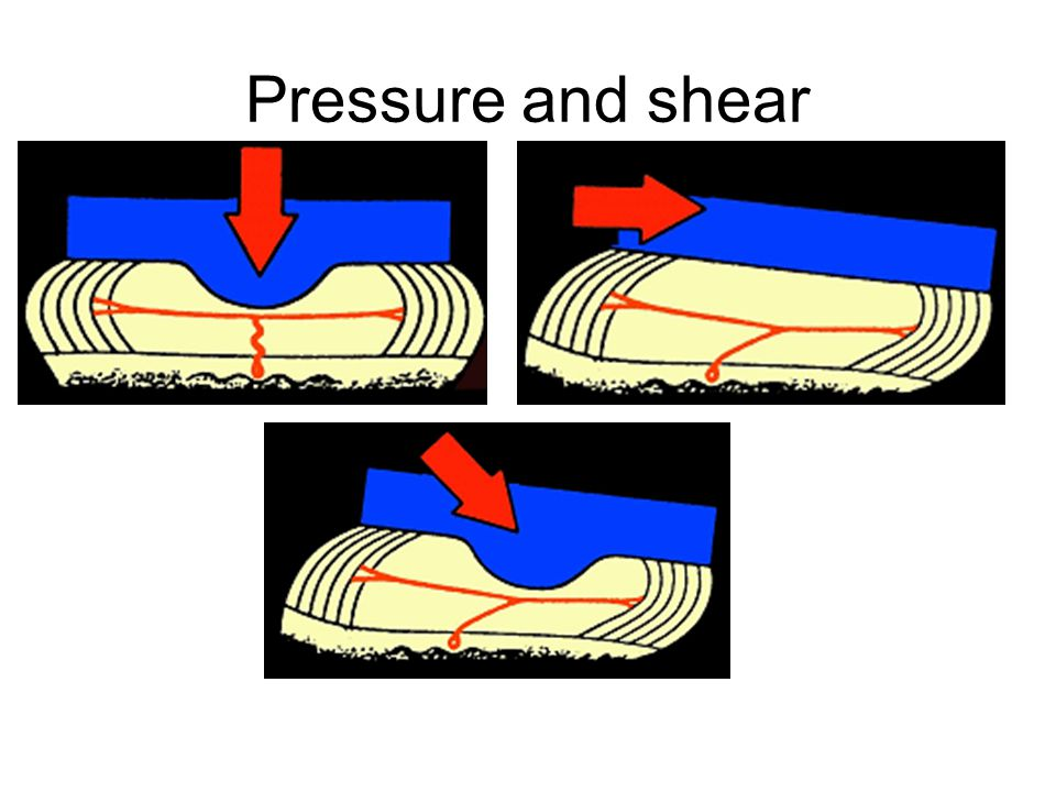 MAIN CAUSES OF PRESSURE ULCERATION/2. Shearing. This is where pushing or pulling the skin means more than one layer of skin slides against each other
