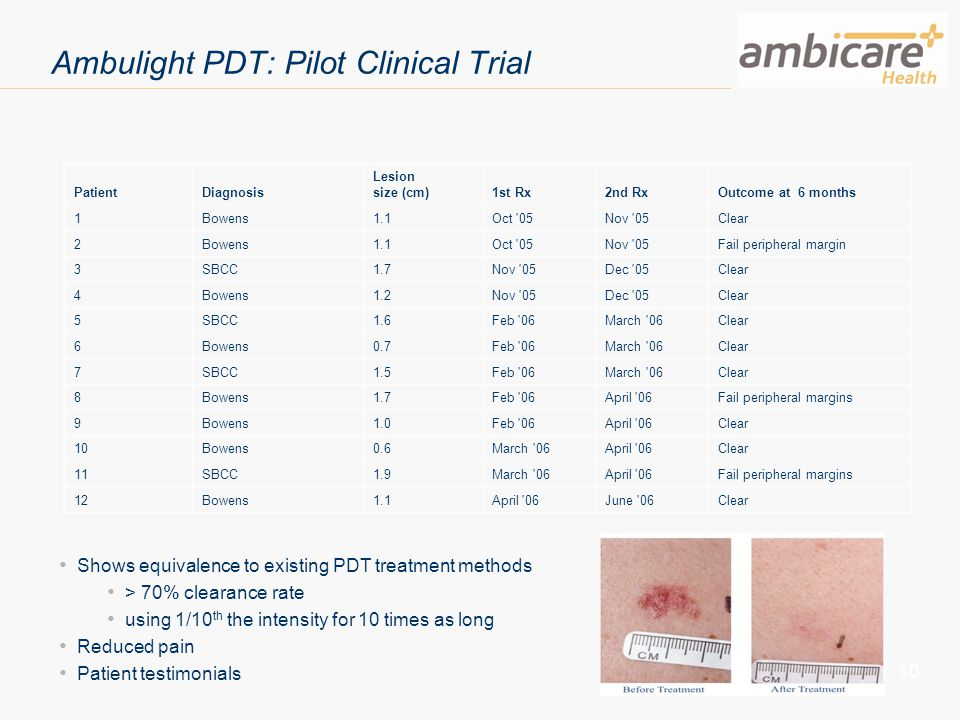 10 Ambulight PDT: Pilot Clinical Trial Shows equivalence to existing PDT treatment methods > 70% clearance rate using 1/10 th the intensity for 10 tim