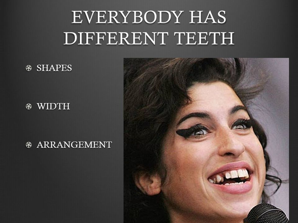 EVERYBODY HAS DIFFERENT TEETH SHAPESWIDTHARRANGEMENT