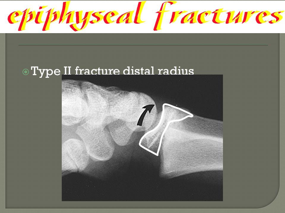  Type II fracture distal radius