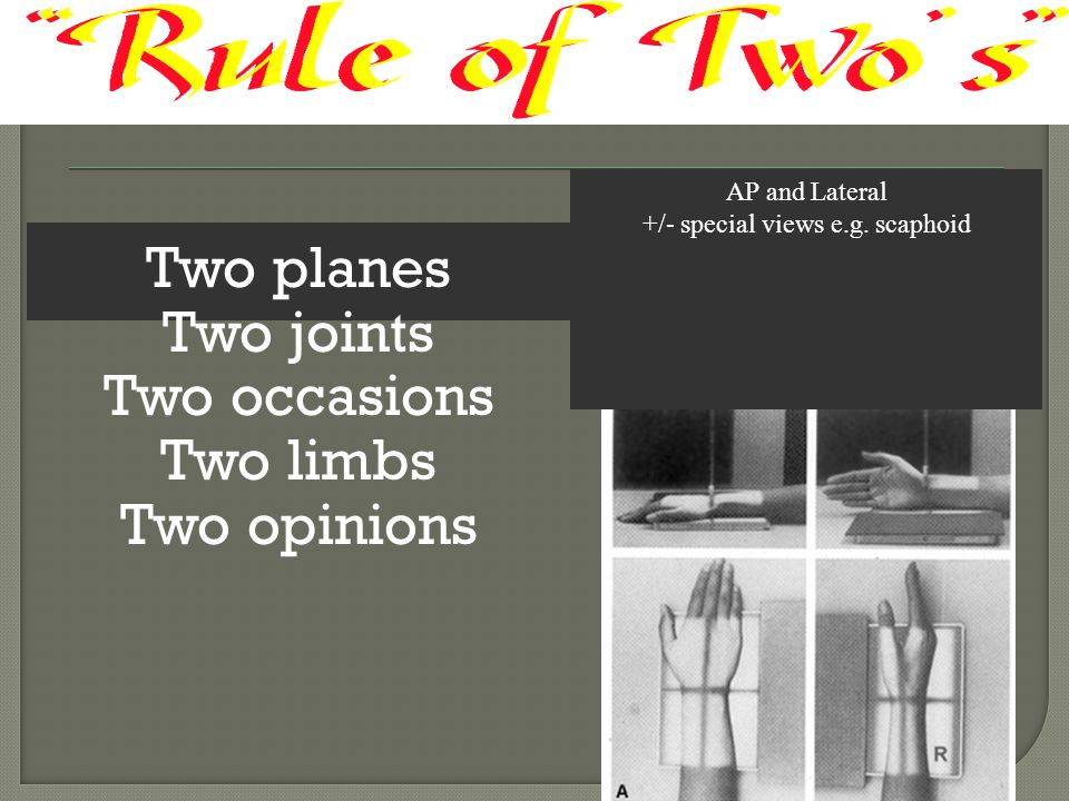 Two planes Two joints Two occasions Two limbs Two opinions AP and Lateral +/- special views e.g. scaphoid
