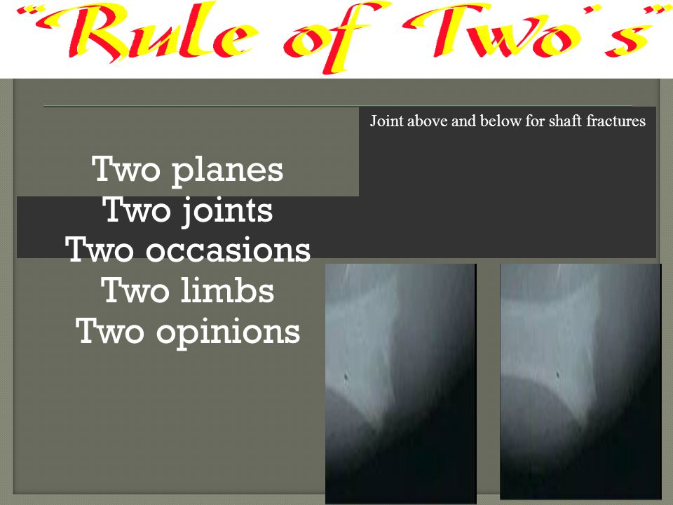 Two planes Two joints Two occasions Two limbs Two opinions Joint above and below for shaft fractures