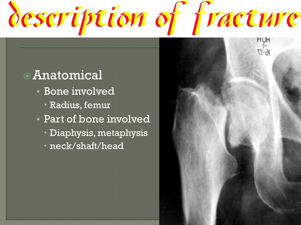  Anatomical Bone involved  Radius, femur Part of bone involved  Diaphysis, metaphysis  neck/shaft/head
