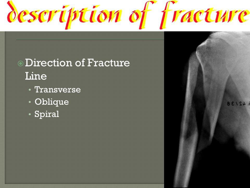  Direction of Fracture Line Transverse Oblique Spiral