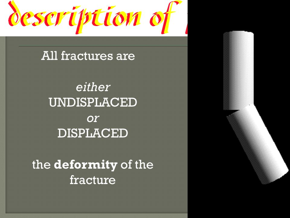 All fractures are either UNDISPLACED or DISPLACED the deformity of the fracture
