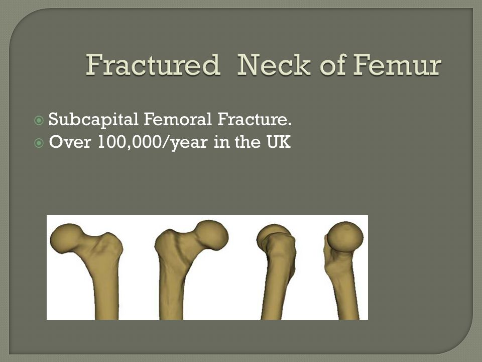  Subcapital Femoral Fracture.  Over 100,000/year in the UK