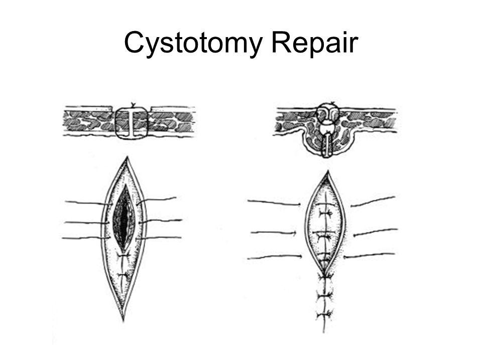 Cystotomy Repair