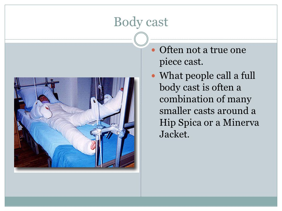 Body cast Often not a true one piece cast. What people call a full body cast is often a combination of many smaller casts around a Hip Spica or a Mine