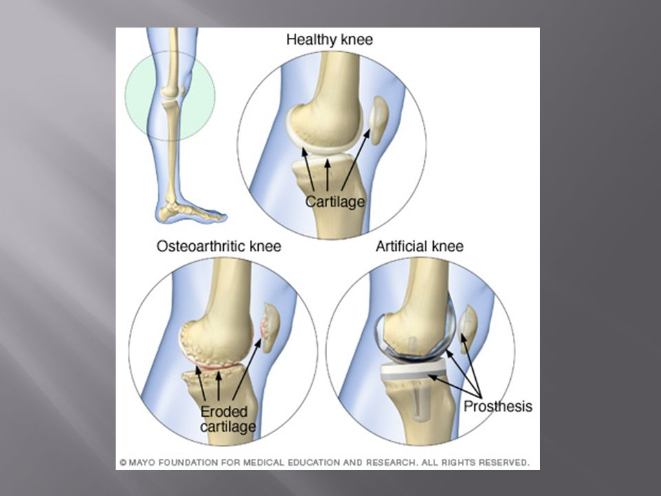  A crack or break in a bone  Despite its mineral strength, bone can crack or even break if subjected to extreme loads, sudden impacts, or stresses from unusual directions