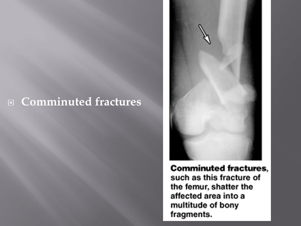  Comminuted fractures
