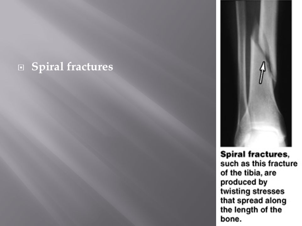  Spiral fractures Figure 6–16 (4 of 9)