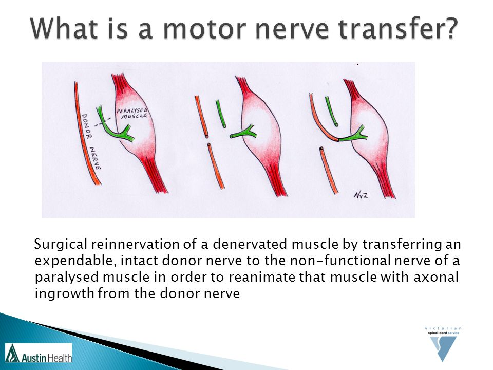 Surgical reinnervation of a denervated muscle by transferring an expendable, intact donor nerve to the non-functional nerve of a paralysed muscle in order to reanimate that muscle with axonal ingrowth from the donor nerve