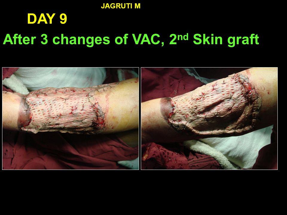 JAGRUTI M After 3 changes of VAC, 2 nd Skin graft DAY 9