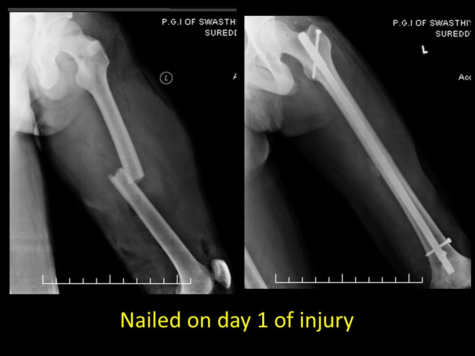 Nailed on day 1 of injury