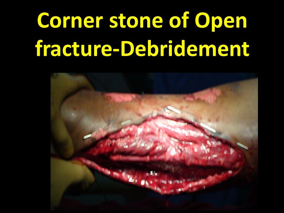 Corner stone of Open fracture-Debridement 1.Wound - Extend longitudinally- 2.Exploration Fasciotomy 3.Debridement 4.Irrigation 5.AB Beads 6.VAC – not