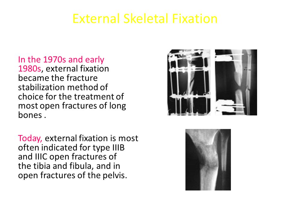 External Skeletal Fixation In the 1970s and early 1980s, external fixation became the fracture stabilization method of choice for the treatment of most open fractures of long bones.