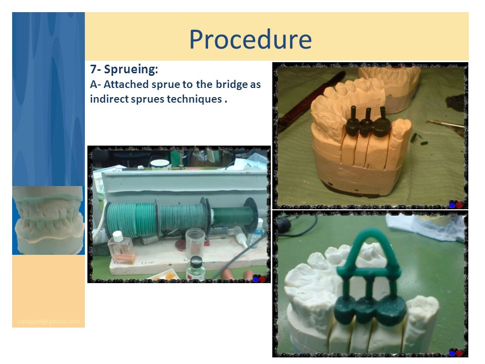 Procedure oalageel@yahoo.com 7- Sprueing: A- Attached sprue to the bridge as indirect sprues techniques.