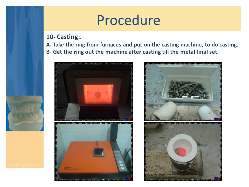 Procedure oalageel@yahoo.com 10- Casting:. A- Take the ring from furnaces and put on the casting machine, to do casting. B- Get the ring out the machi