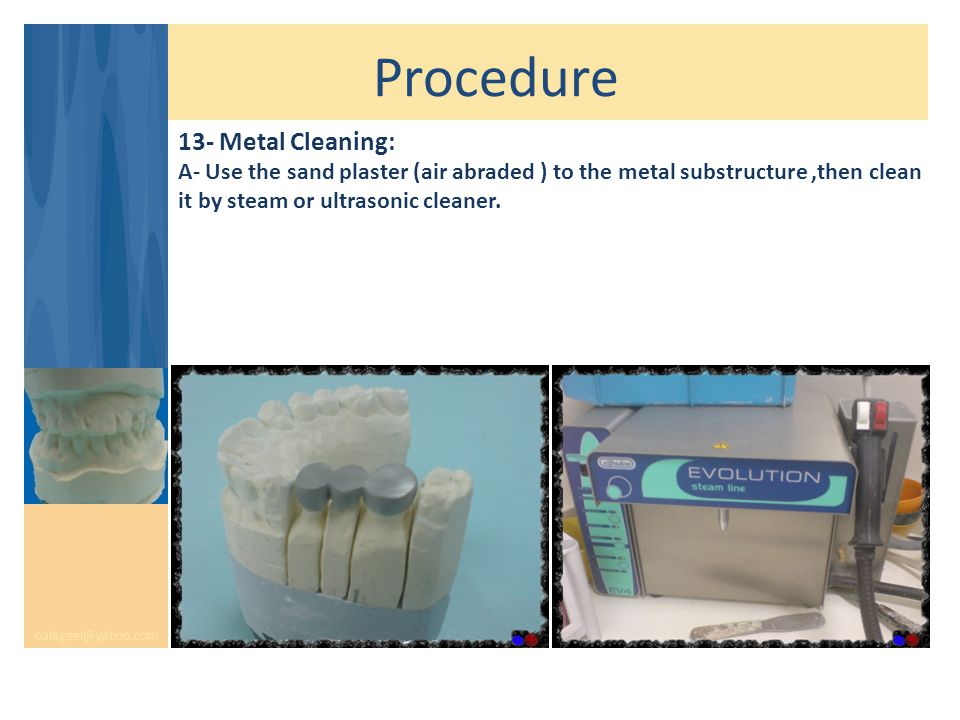 Procedure oalageel@yahoo.com 13- Metal Cleaning: A- Use the sand plaster (air abraded ) to the metal substructure,then clean it by steam or ultrasonic cleaner.