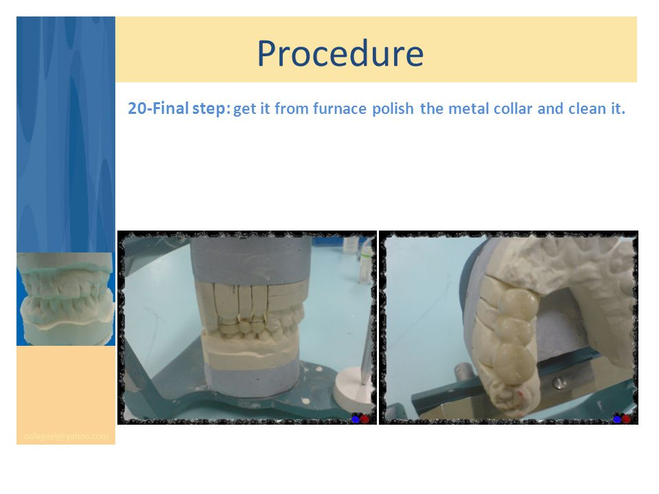 Procedure oalageel@yahoo.com 20-Final step: get it from furnace polish the metal collar and clean it.