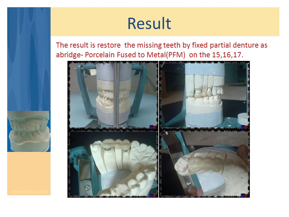 Result oalageel@yahoo.com The result is restore the missing teeth by fixed partial denture as abridge- Porcelain Fused to Metal(PFM) on the 15,16,17.