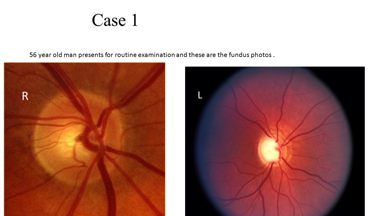 Case 1 56 year old man presents for routine examination and these are the fundus photos. L L R