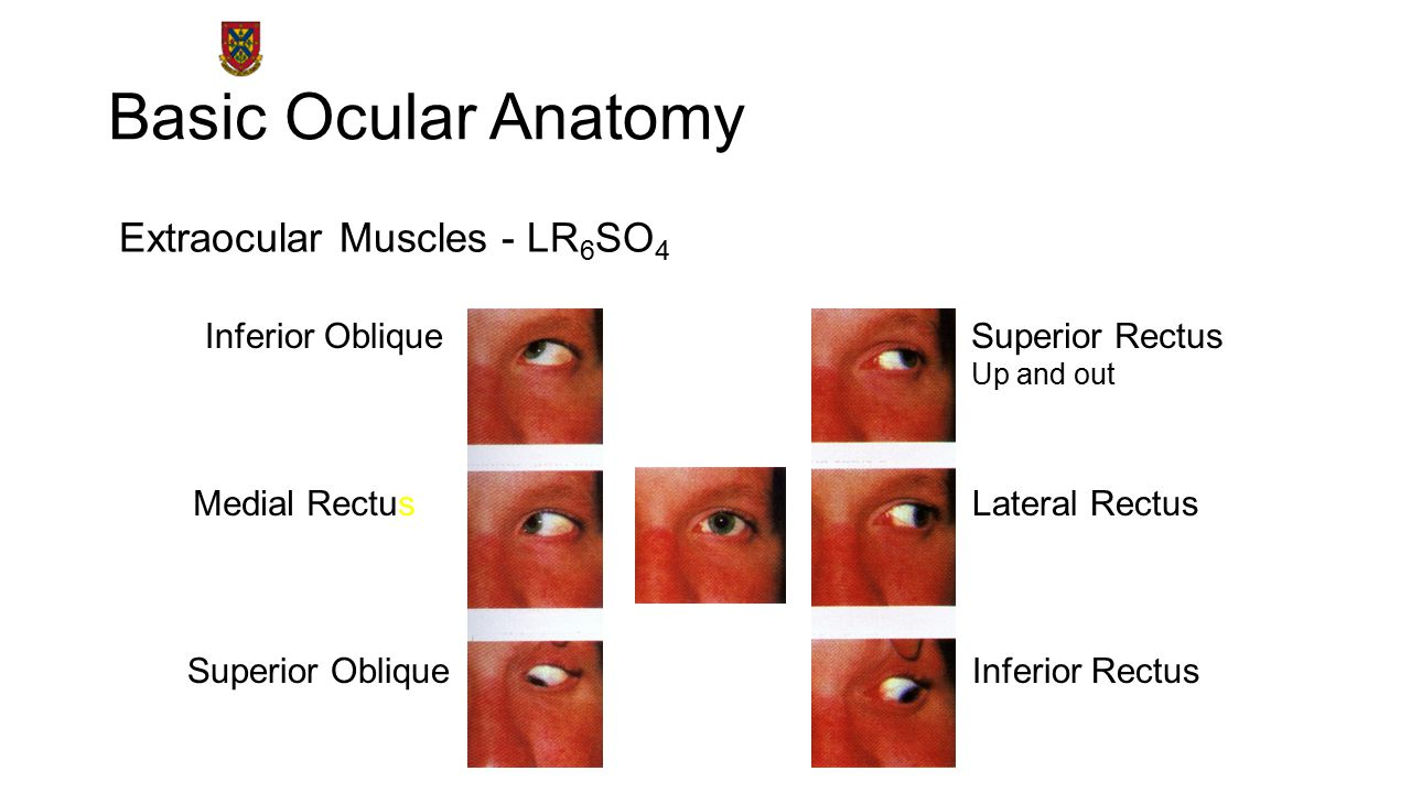 Basic Ocular Anatomy Extraocular Muscles - LR 6 SO 4 Lateral Rectus Laterally CN VI Medial Rectus Medially CN III Inferior Rectus Down and out CN III