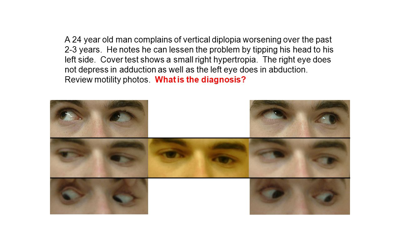 A 24 year old man complains of vertical diplopia worsening over the past 2-3 years. He notes he can lessen the problem by tipping his head to his left