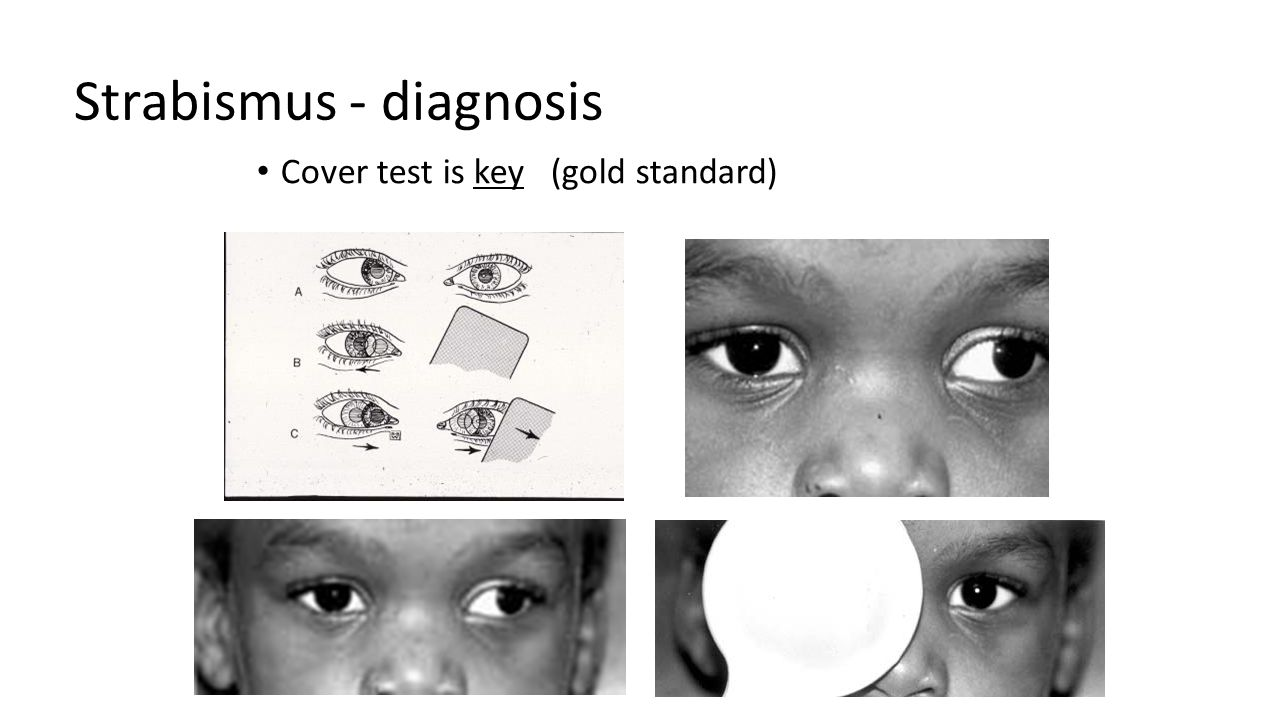 Strabismus - diagnosis Cover test is key (gold standard)