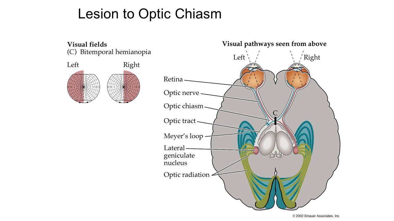 Lesion to Optic Chiasm