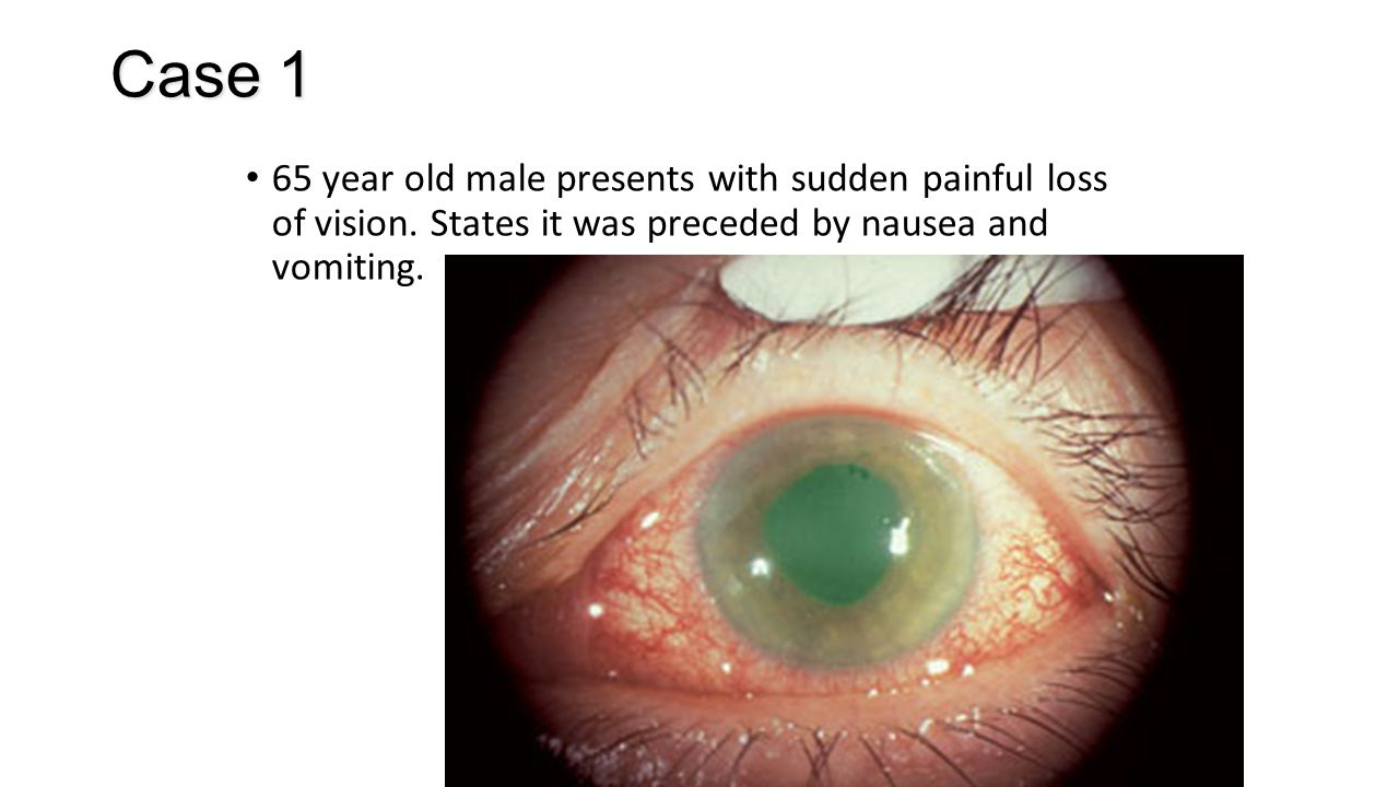Case 1 65 year old male presents with sudden painful loss of vision. States it was preceded by nausea and vomiting.