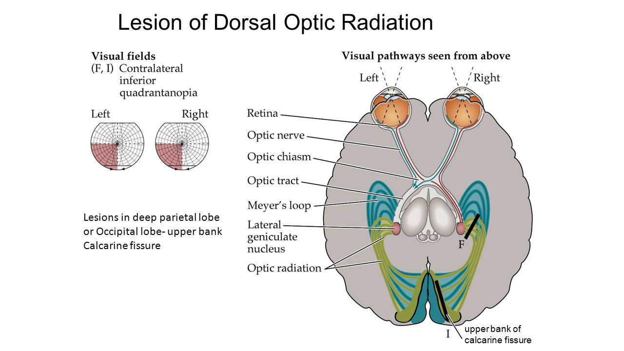 Lesion of Dorsal Optic Radiation upper bank of calcarine fissure Lesions in deep parietal lobe or Occipital lobe- upper bank Calcarine fissure