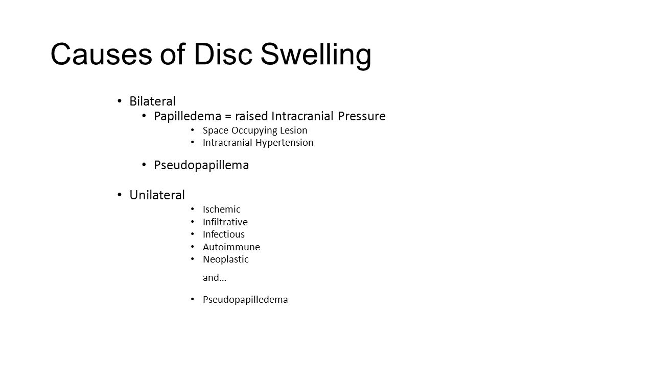 Causes of Disc Swelling Bilateral Papilledema = raised Intracranial Pressure Space Occupying Lesion Intracranial Hypertension Pseudopapillema Unilater