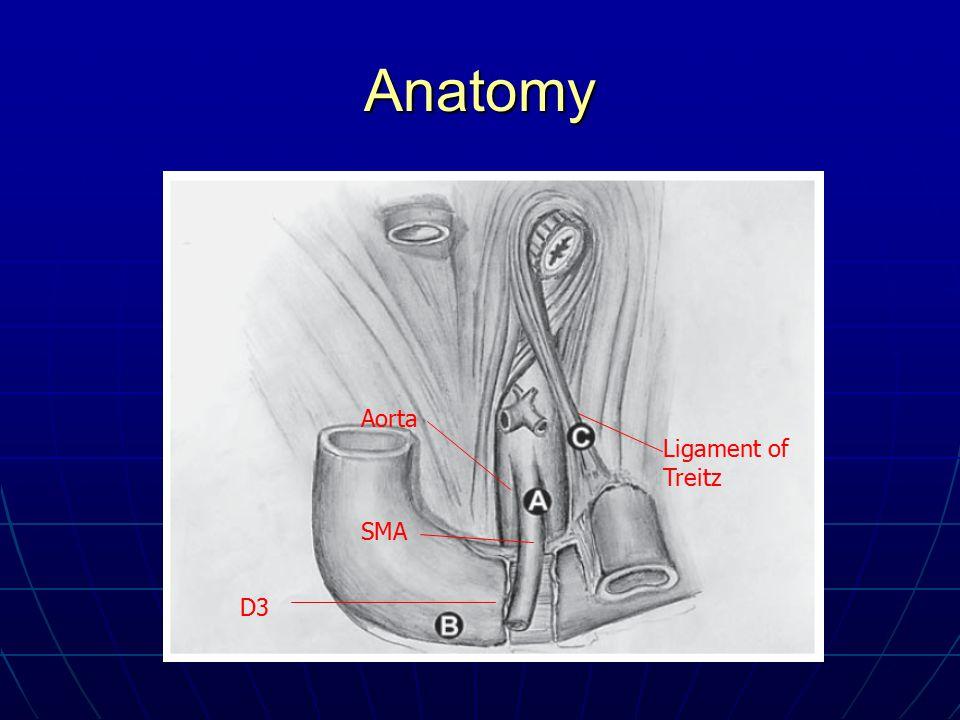 Anatomy Aorta SMA D3 Ligament of Treitz