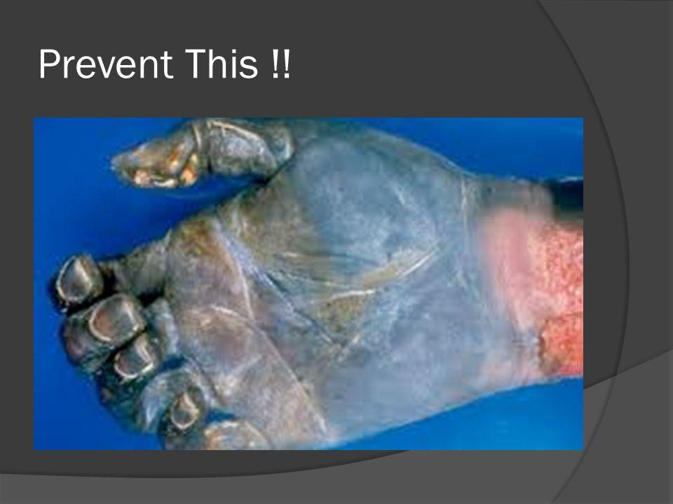 Prevent This !!