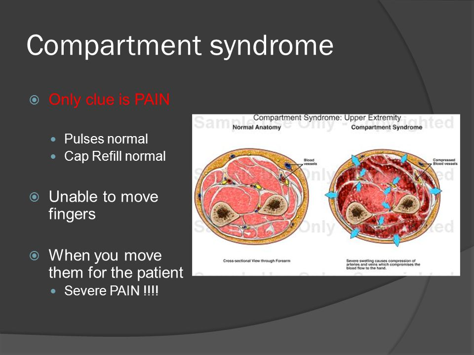 Compartment syndrome  Only clue is PAIN Pulses normal Cap Refill normal  Unable to move fingers  When you move them for the patient Severe PAIN !!!