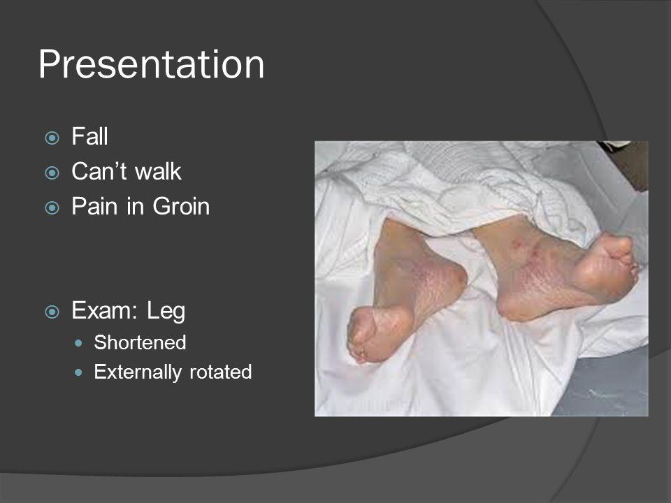 Presentation  Fall  Can't walk  Pain in Groin  Exam: Leg Shortened Externally rotated