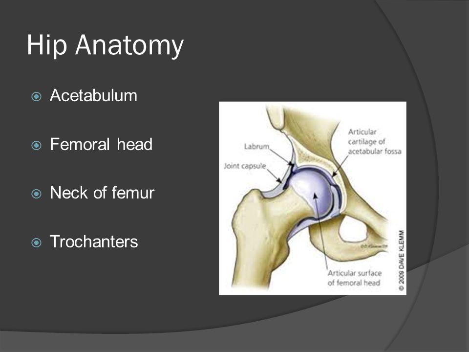 Hip Anatomy  Acetabulum  Femoral head  Neck of femur  Trochanters