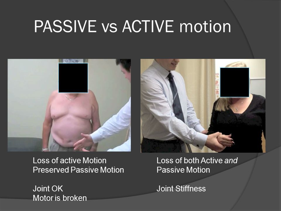 PASSIVE vs ACTIVE motion Loss of active Motion Preserved Passive Motion Joint OK Motor is broken Loss of both Active and Passive Motion Joint Stiffnes