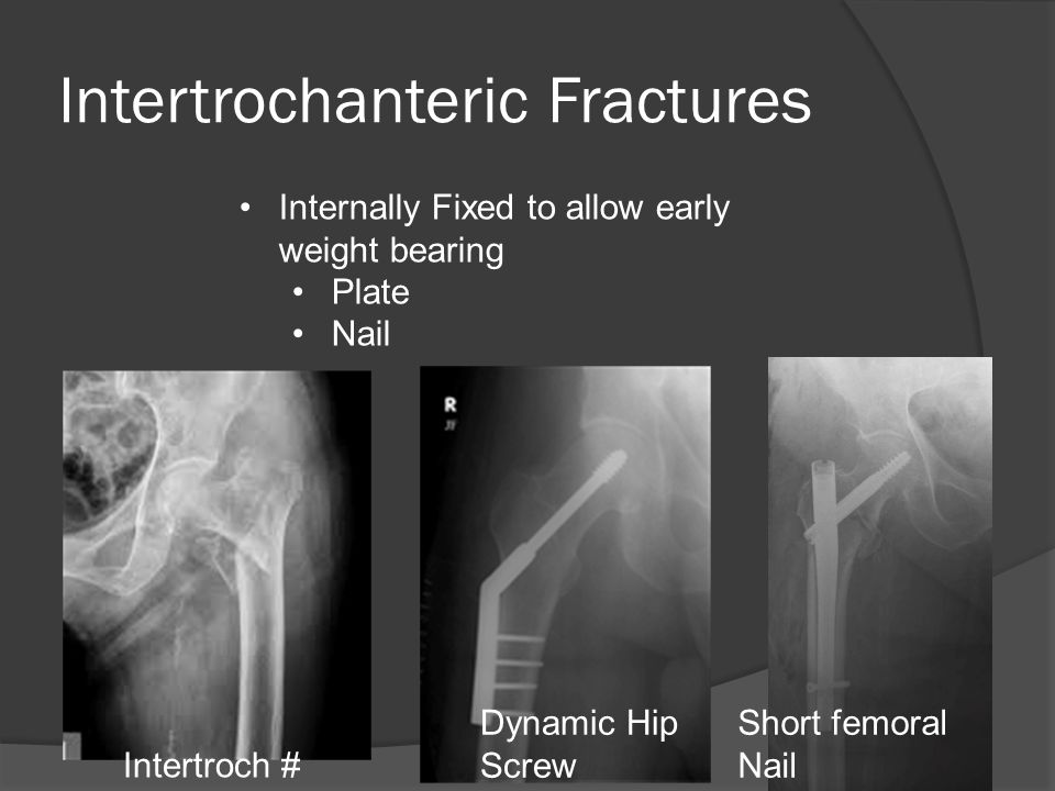 Intertrochanteric Fractures Dynamic Hip Screw (DHS) Short femoral Nail Intertroch # Internally Fixed to allow early weight bearing Plate Nail