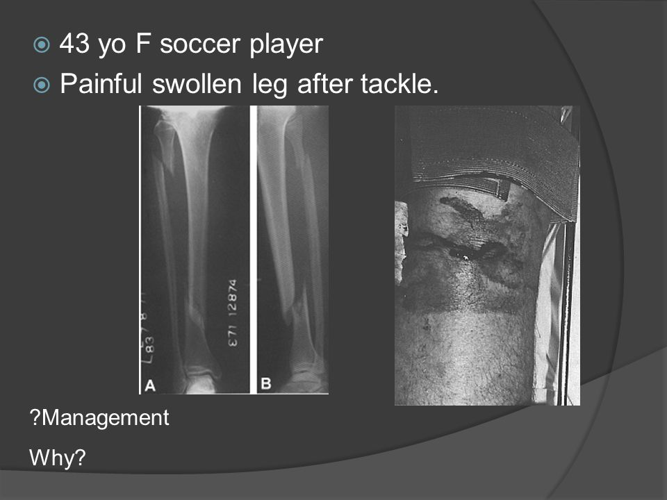  43 yo F soccer player  Painful swollen leg after tackle. ?Management Why?
