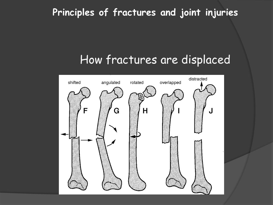 Principles of fractures and joint injuries How fractures are displaced
