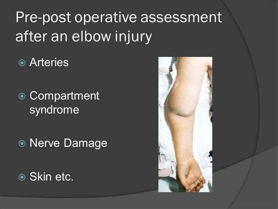 Pre-post operative assessment after an elbow injury  Arteries  Compartment syndrome  Nerve Damage  Skin etc.