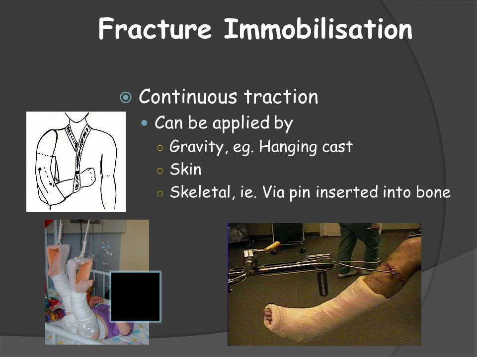 Fracture Immobilisation  Continuous traction Can be applied by ○ Gravity, eg. Hanging cast ○ Skin ○ Skeletal, ie. Via pin inserted into bone