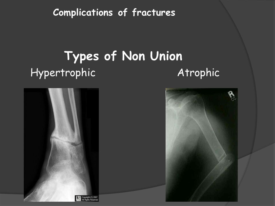 Complications of fractures Types of Non Union Hypertrophic Atrophic