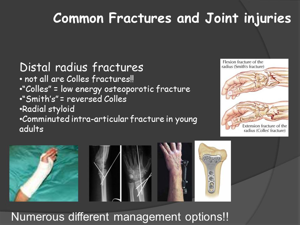"""Common Fractures and Joint injuries Distal radius fractures not all are Colles fractures!! """"Colles"""" = low energy osteoporotic fracture """"Smith's"""" = rev"""