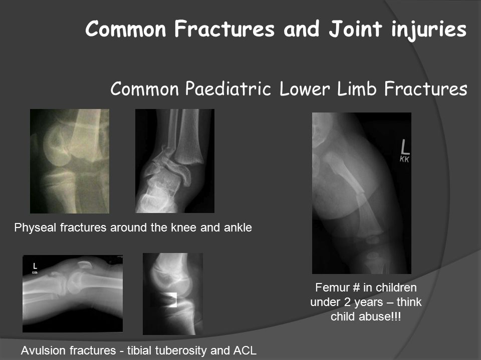 Common Fractures and Joint injuries Common Paediatric Lower Limb Fractures Avulsion fractures - tibial tuberosity and ACL Physeal fractures around the